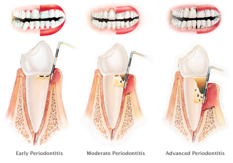 Levels of chronic periodontitis © Stanley Dentistry