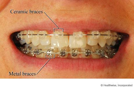 Cheap Orthodontics Is It Possible Intelligent Dental