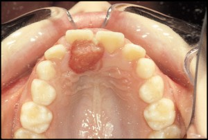 4800324f8 300x202 What is Oral Pyogenic Granuloma?