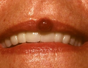 909470 910112 455 300x234 What is Oral Pyogenic Granuloma?