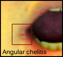 Chelitis Oral Health: Relationship between the body and mouth II