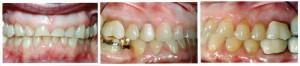 Acid erosion of teeth © PennWell Corporation