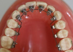 lingual braces 300x213 Cheap orthodontics: Is it possible?