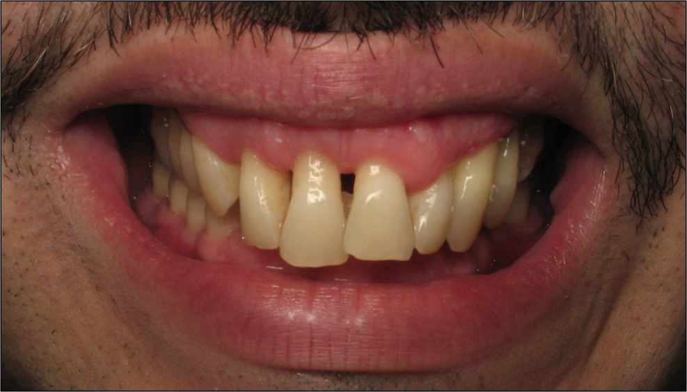 gingival flap
