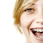why braces 150x150 Foods you should avoid eating while wearing braces