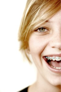 why braces 200x300 Cheap orthodontics: Is it possible?
