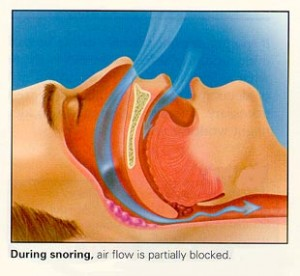 duringsnoring 300x276 How to stop snoring at night naturally