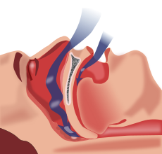 230px Obstruction ventilation apn%C3%A9e sommeil.svg  How to stop snoring using a mandibular advancement splints
