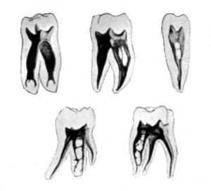 CanalAnatomy 300x272 The Dangers of Root Canal Treatment
