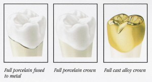 Crown Types 300x161 How to Clean a Temporary Tooth Crown?