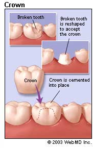 Crown How to Clean a Temporary Tooth Crown?