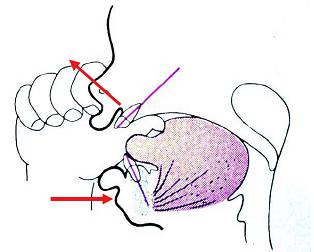 how to fix an open bite without surgery