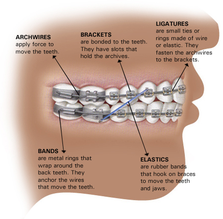 What Is Ligature Wire For Adult Braces Intelligent Dental