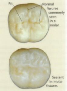 children3 221x300 Dental Sealants Vs. Fillings in Pediatric Dentistry