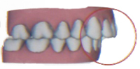 ddcc3 09 Can Invisalign Fix Buck Teeth?