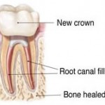 endoretreat61 150x150 How to Tell If a Root Canal Needs to be Redone?