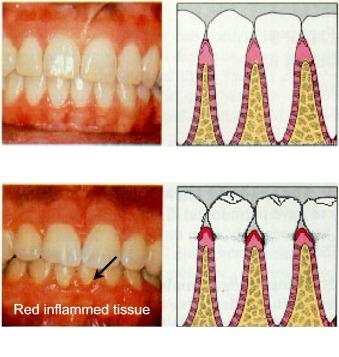 Plaque-associated gingivitis