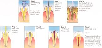 images 1 Root Canal Treatment  How is it performed?