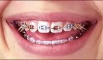 index 150x88 Why do you need Rubber Bands for Braces?