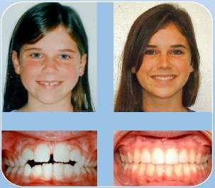 How To Fix An Open Bite Intelligent Dental