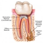 root canal retreatment 150x150 How to Tell If a Root Canal Needs to be Redone?