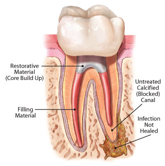 How to Tell If a Root Canal Needs to be Redone