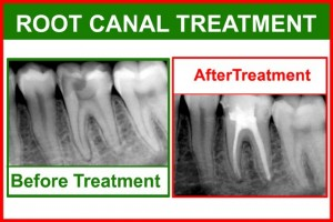 root canal2 300x200 Dental Assistant Guide to Root Canal Treatment