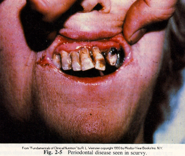 scurvy bleeding gums 150x150 Home Cures for Pyria of the Gums