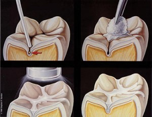 sealant x41 300x232 Dental Sealants Vs. Fillings in Pediatric Dentistry
