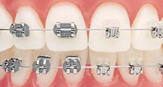 self ligating braces vs traditional What is Ligature Wire for Adult Braces?