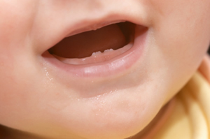 soothing teething pain How to Treat Teething Symptoms With Homeopathy