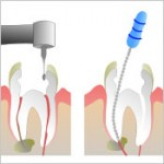 when a root canal goes bad 150x150 How to Tell If a Root Canal Needs to be Redone?