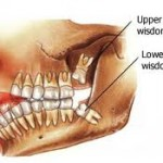 impaction1 150x150 How to Tell If Your Wisdom Teeth Are Coming In