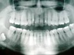 impaction3 150x112 How to Tell If Your Wisdom Teeth Are Coming In
