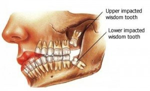 wisdom teeth 300x182 Wisdom Tooth Nerve Pain