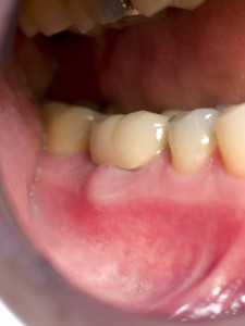 1799960643 4196783306 225x300 How to treat a Tooth with an Infected Old Crown