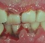 anug 150x143 How to Identify Symptoms of Trench Mouth