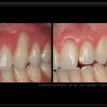 gum recession1 150x150 How Does Gingival Recession Occur?
