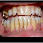 gumrecession2 150x150 How Does Gingival Recession Occur?