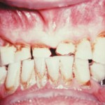 abfraction 2 150x150 Causes of Sensitive Teeth