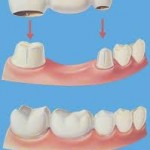 bridge 11 150x150 Advantages and Disadvantages of Dental Bridges