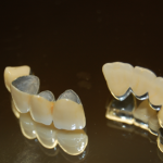 PFM 150x150 What Is the Difference in a Dental Bridge and a Removable Partial Denture?