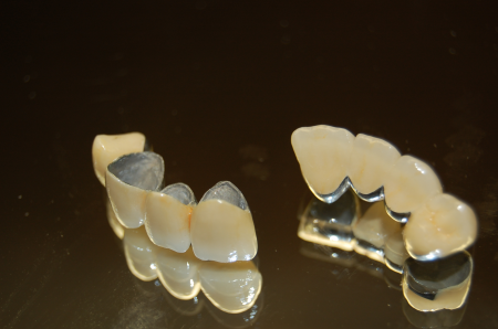 What Is The Difference Between Bridge And Removable Partial Denture