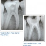 bfore and after RCT 150x150 What Is the Purpose of a Root Canal Treatment?
