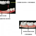 bridge 150x150 What Is the Difference in a Dental Bridge and a Removable Partial Denture?