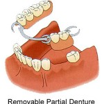 partial 150x150 What Is the Difference in a Dental Bridge and a Removable Partial Denture?