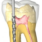 root canal 470 150x150 What Is the Purpose of a Root Canal Treatment?