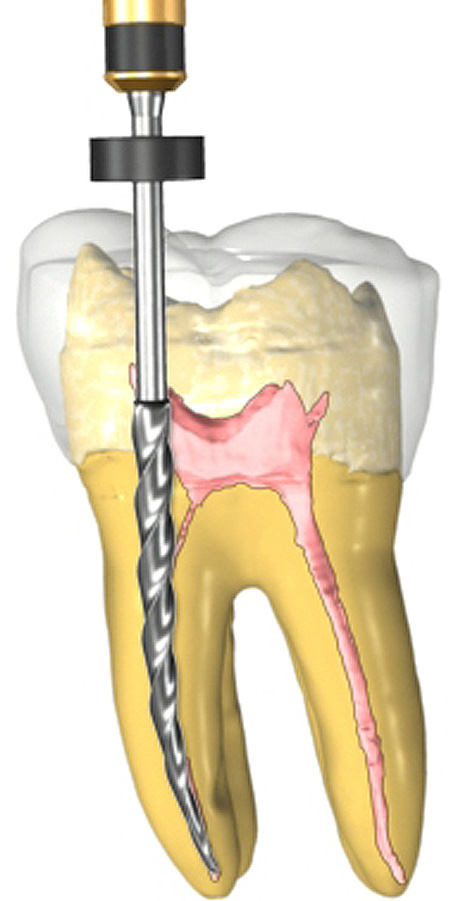 root-canal-470.jpg