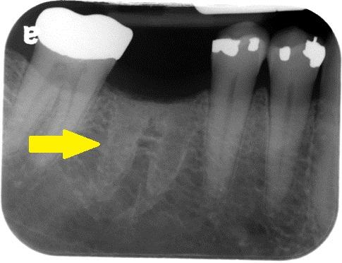 what is a bone spicule intelligent dental