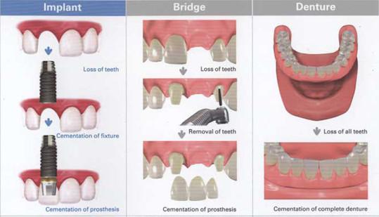2011 08 24 150958 Advantages and Disadvantages of Dental Bridges